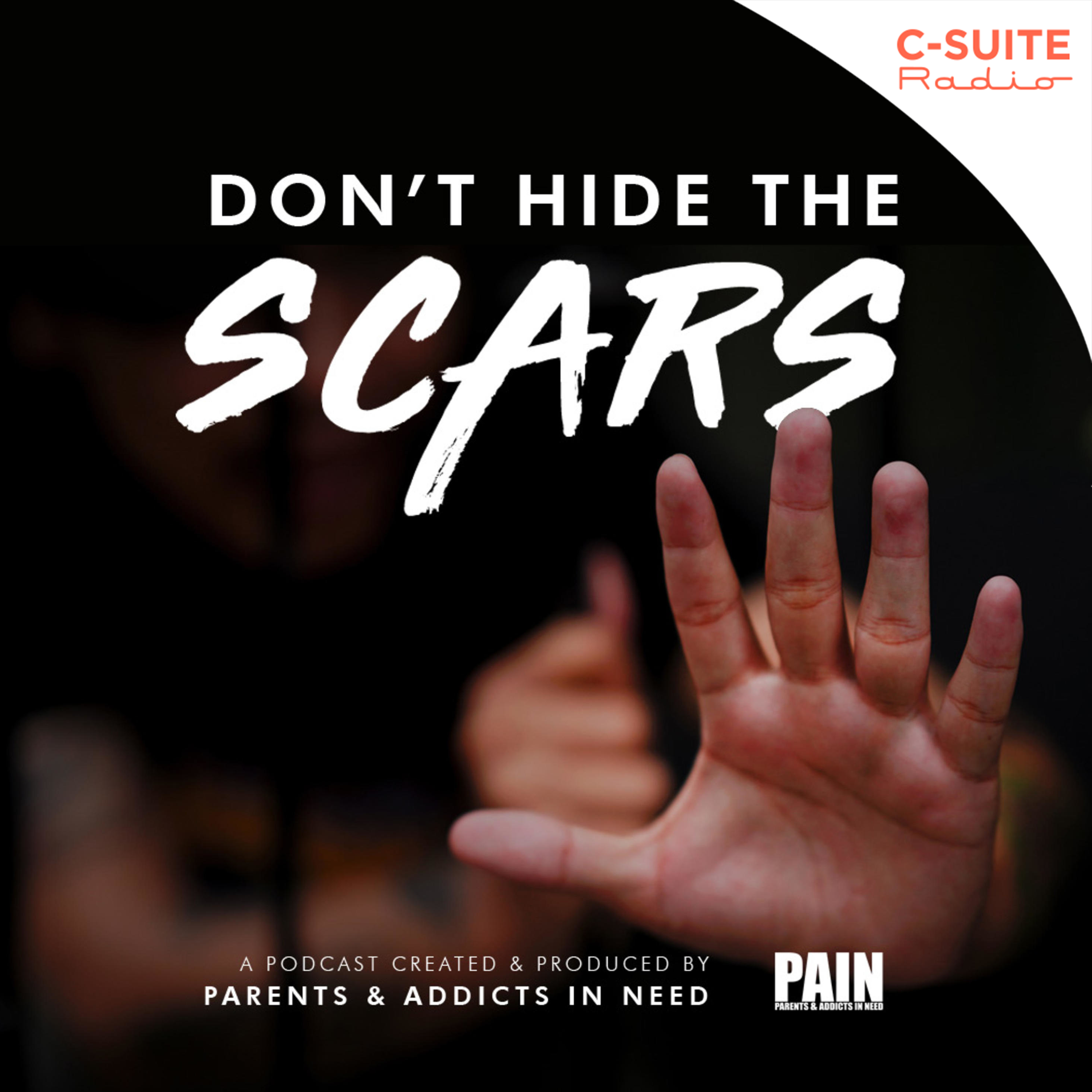 Don't Hide The Scars